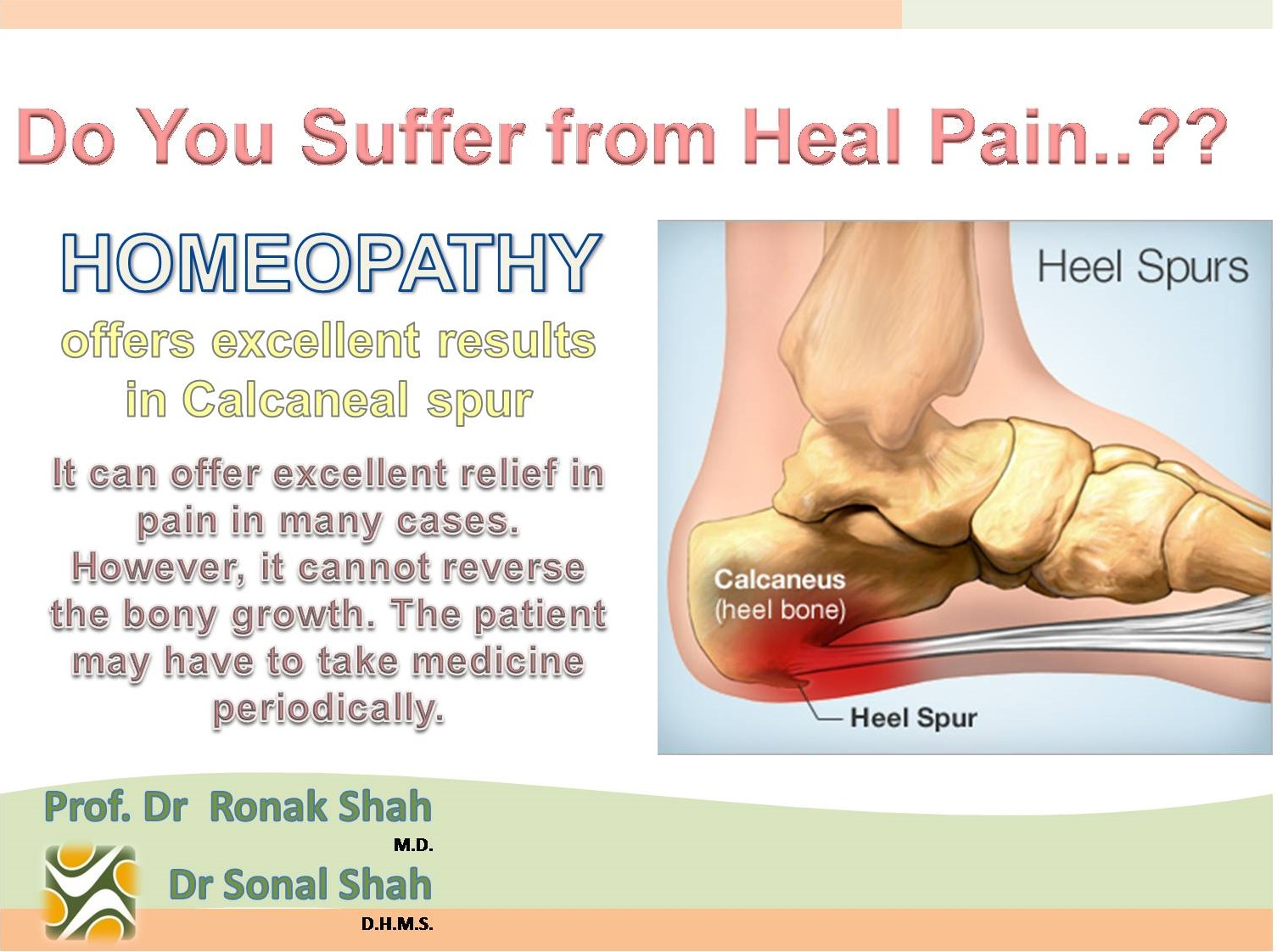 Treatment of folk remedies by the spur on the heel