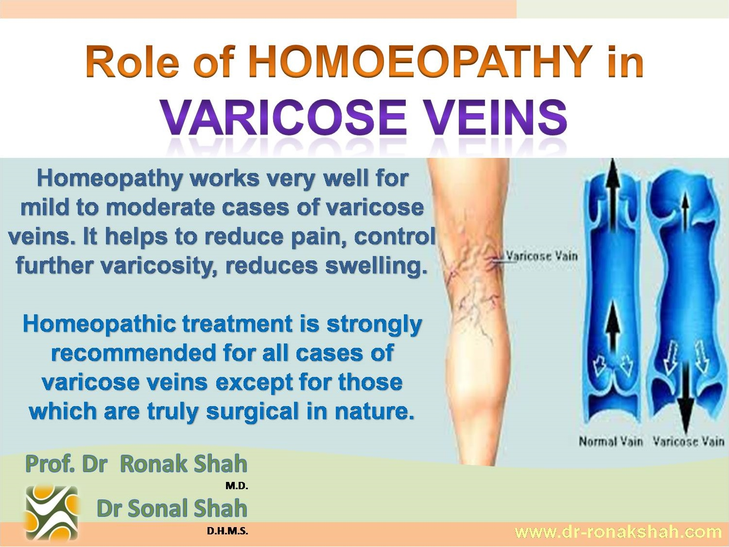 alternative treatment for varicose veins